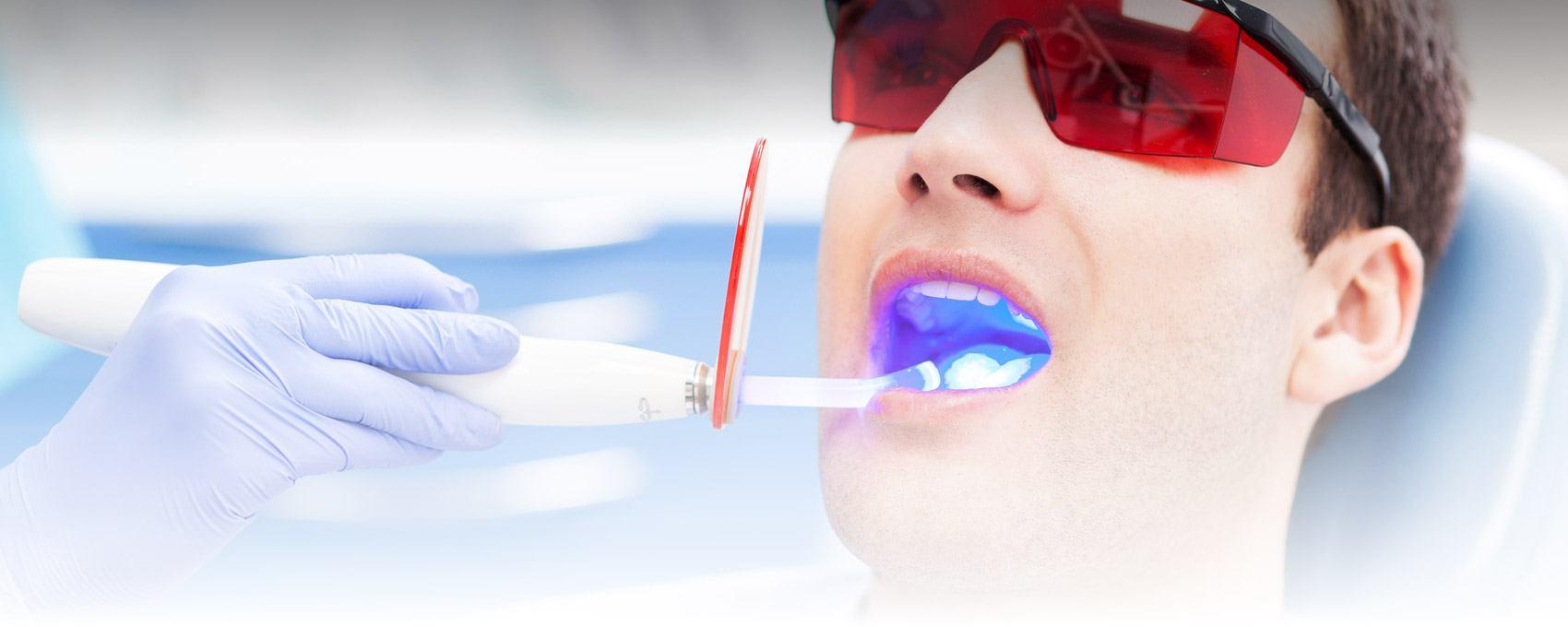 Tooth Whitening, CA